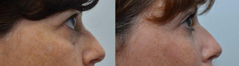 Facial Revolumizing (Fat Transfer) Gallery - Patient 4588316 - Image 3