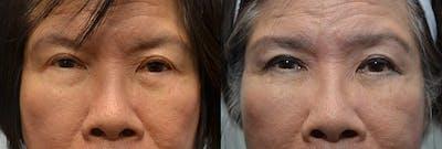Facial Revolumizing (Fat Transfer) Gallery - Patient 4588317 - Image 2
