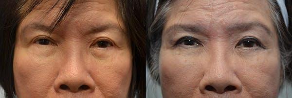 Facial Revolumizing (Fat Transfer) Gallery - Patient 4588317 - Image 1