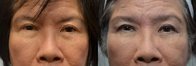 Facial Revolumizing (Fat Transfer) Gallery - Patient 4588317 - Image 1