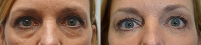 Facial Revolumizing (Fat Transfer) Gallery - Patient 4588318 - Image 2