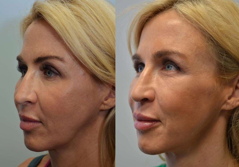 Facial Revolumizing (Fat Transfer) Gallery - Patient 4588318 - Image 3