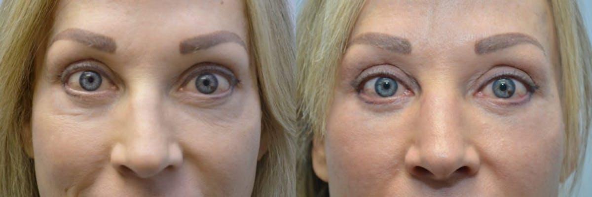 Facial Revolumizing (Fat Transfer) Gallery - Patient 4588320 - Image 1