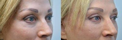 Facial Revolumizing (Fat Transfer) Gallery - Patient 4588320 - Image 2