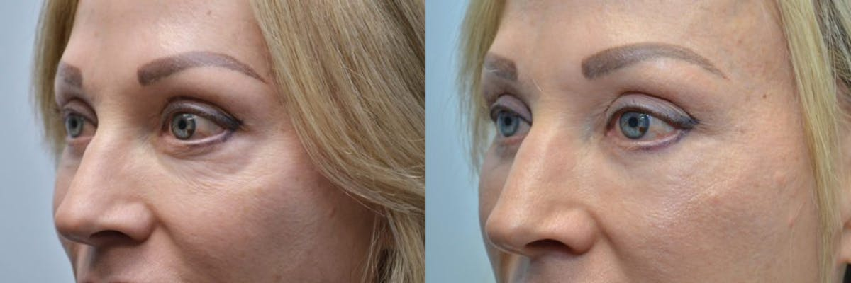 Facial Revolumizing (Fat Transfer) Gallery - Patient 4588320 - Image 3