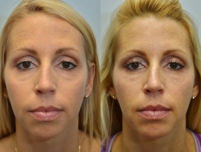 Facial Revolumizing (Fat Transfer) Gallery - Patient 4588321 - Image 5