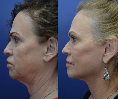 Neck Lift Gallery - Patient 4588339 - Image 1