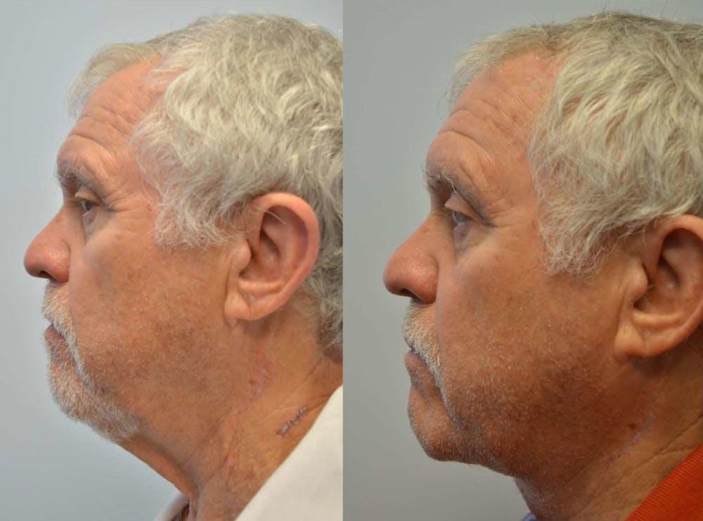 Neck Lift Gallery - Patient 4588340 - Image 2