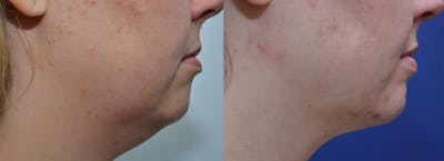 Neck Lift Gallery - Patient 4588342 - Image 1