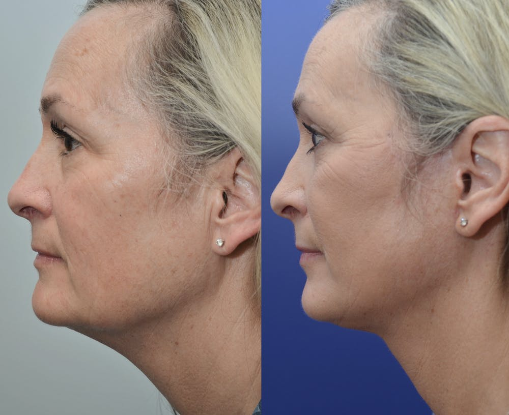 Neck Lift Gallery - Patient 4588345 - Image 1