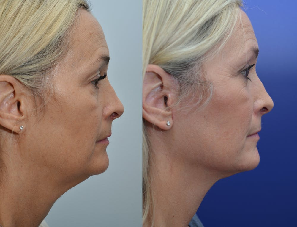 Neck Lift Gallery - Patient 4588345 - Image 5
