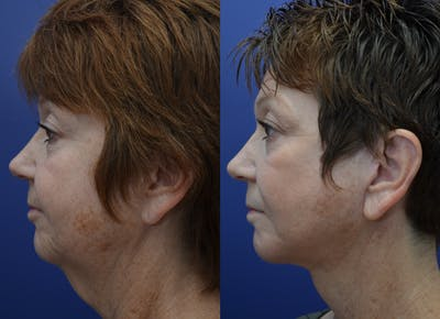 Neck Lift Gallery - Patient 4588347 - Image 1
