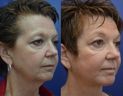 Neck Lift Gallery - Patient 4588347 - Image 2