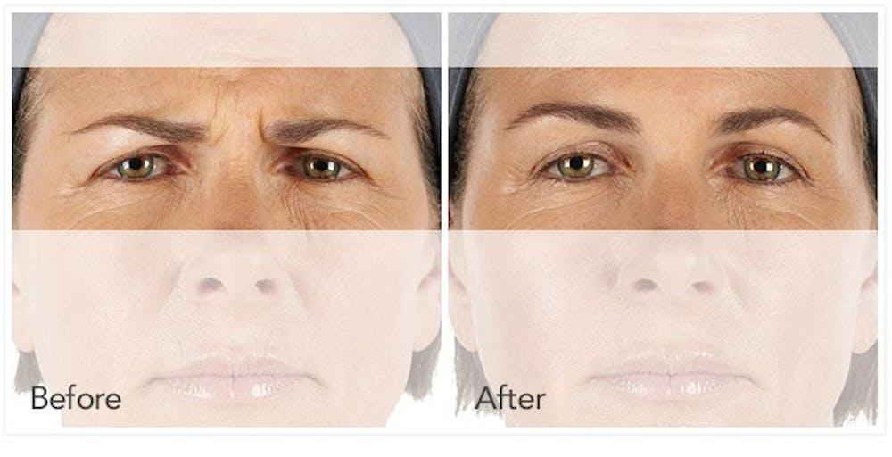 Botox / Xeomin / Dysport Gallery - Patient 4588378 - Image 1