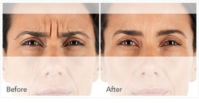 Botox / Xeomin / Dysport Gallery - Patient 4588380 - Image 1