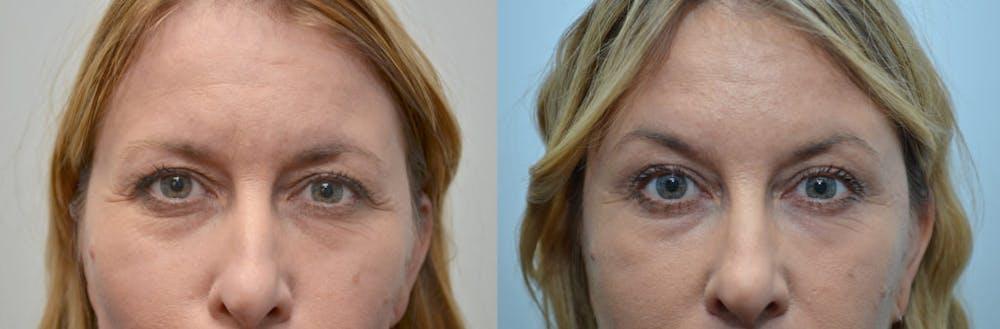 Botox / Xeomin / Dysport Gallery - Patient 4588381 - Image 1