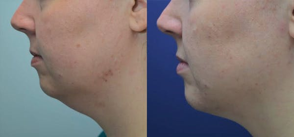 Liposuction Gallery - Patient 4588392 - Image 1