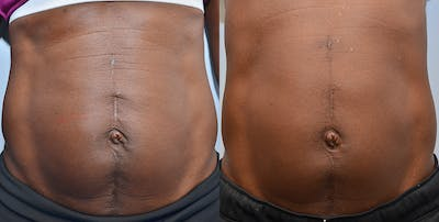 Cellulite Reduction Gallery - Patient 4588404 - Image 1