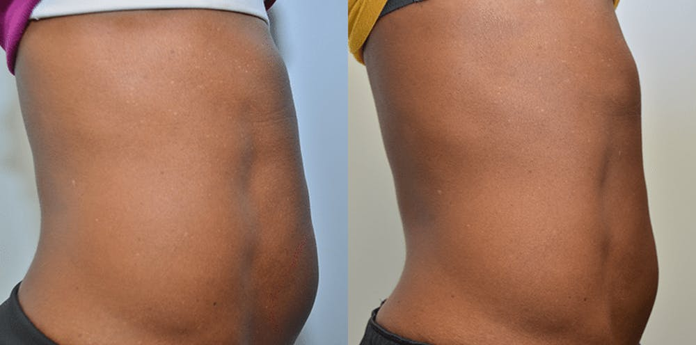 Cellulite Reduction Gallery - Patient 4588404 - Image 2