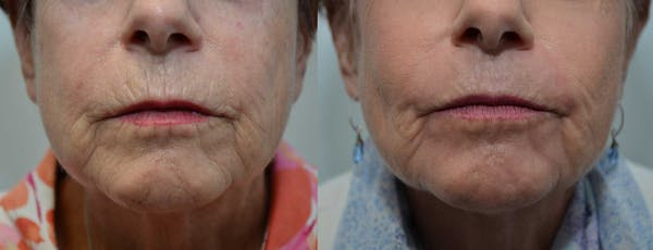 Dermabrasion / Chemical Peel Gallery - Patient 4588407 - Image 1