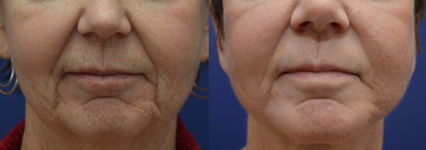 Dermabrasion / Chemical Peel Gallery - Patient 4588409 - Image 1