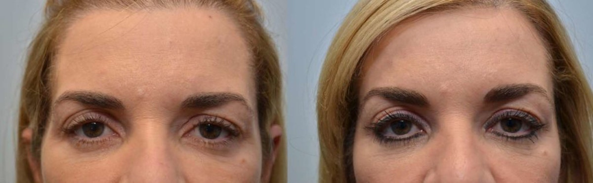 Botox / Xeomin / Dysport Gallery - Patient 4588413 - Image 1