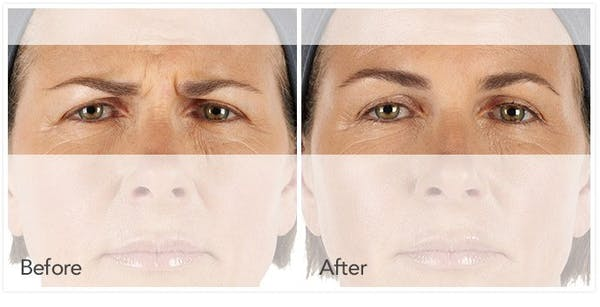 Botox / Xeomin / Dysport Gallery - Patient 4588414 - Image 1