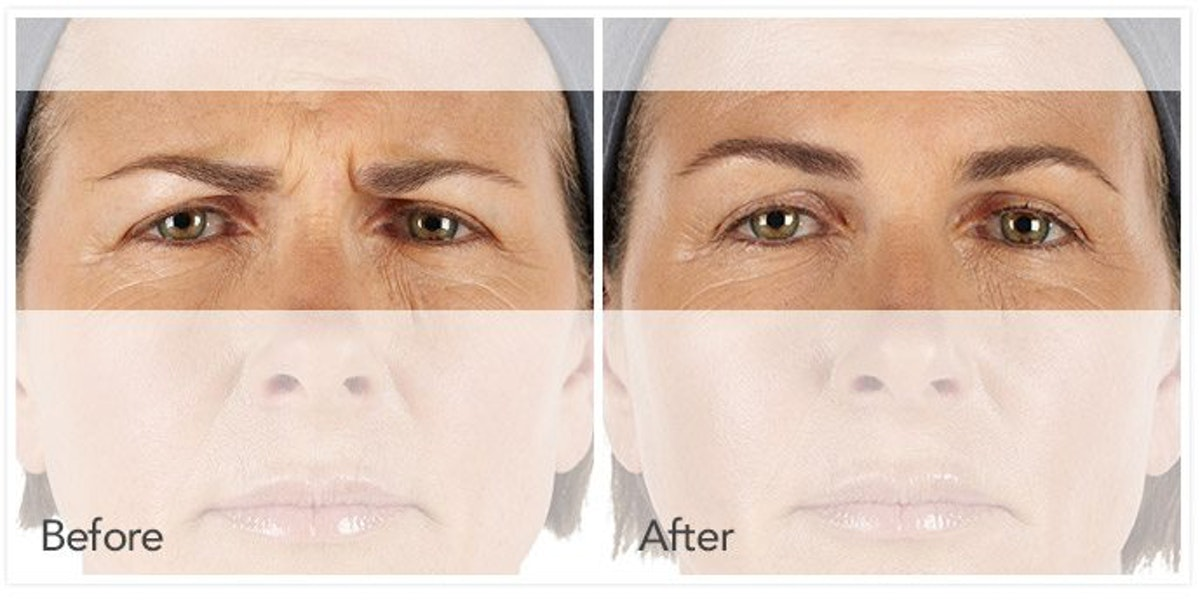 Botox / Xeomin / Dysport Gallery - Patient 4588414 - Image 1