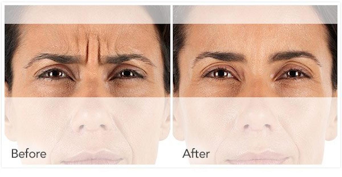 Botox / Xeomin / Dysport Gallery - Patient 4588415 - Image 1
