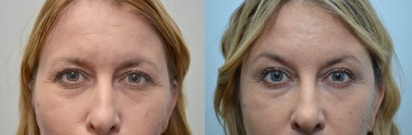 Botox / Xeomin / Dysport Gallery - Patient 4588421 - Image 1