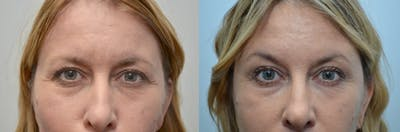 Botox / Xeomin / Dysport Gallery - Patient 4588421 - Image 1
