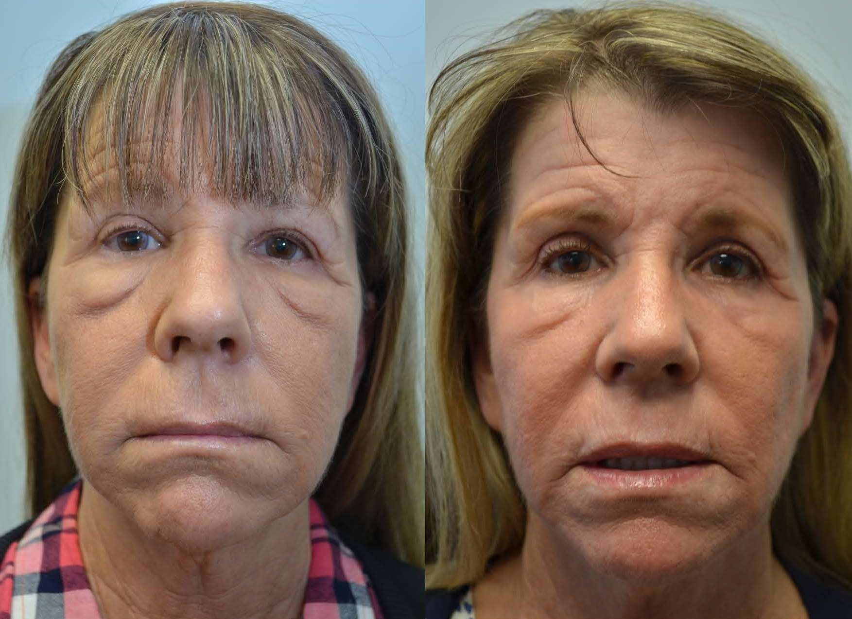 C02 Laser Resurfacing Thousand Oaks