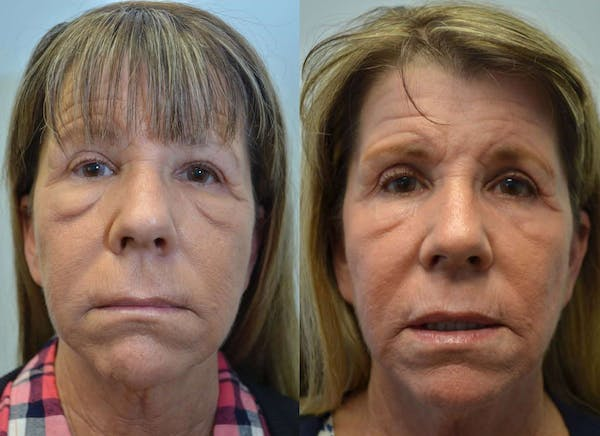 CO2 Laser Resurfacing Gallery - Patient 4588426 - Image 1
