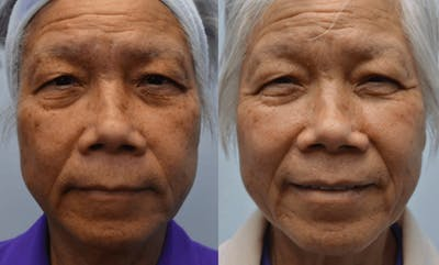 CO2 Laser Resurfacing Gallery - Patient 4588427 - Image 1