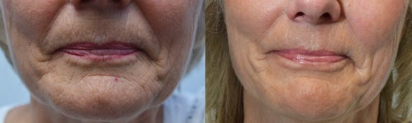 CO2 Laser Resurfacing Gallery - Patient 4588437 - Image 1