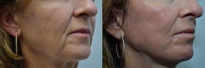 CO2 Laser Resurfacing Gallery - Patient 4588437 - Image 4