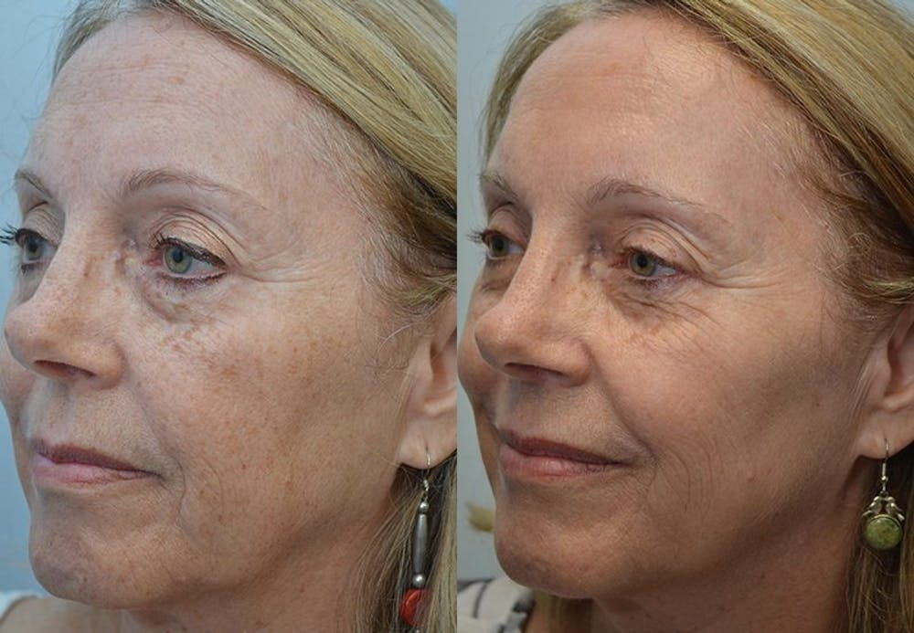 IPL / PhotoFacial Gallery - Patient 4588488 - Image 1