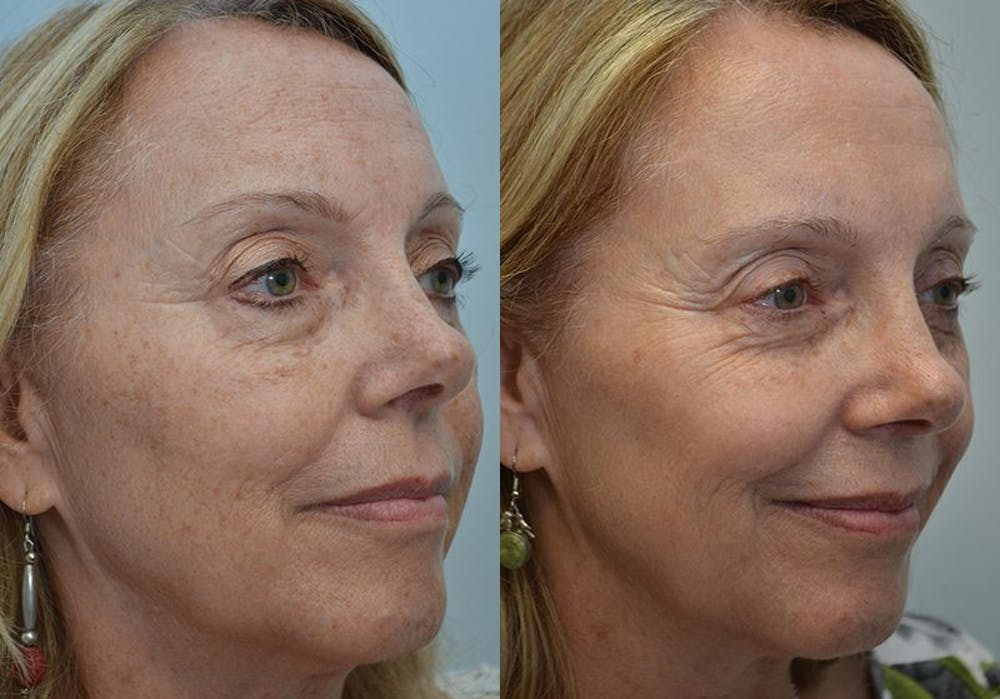 IPL / PhotoFacial Gallery - Patient 4588488 - Image 2