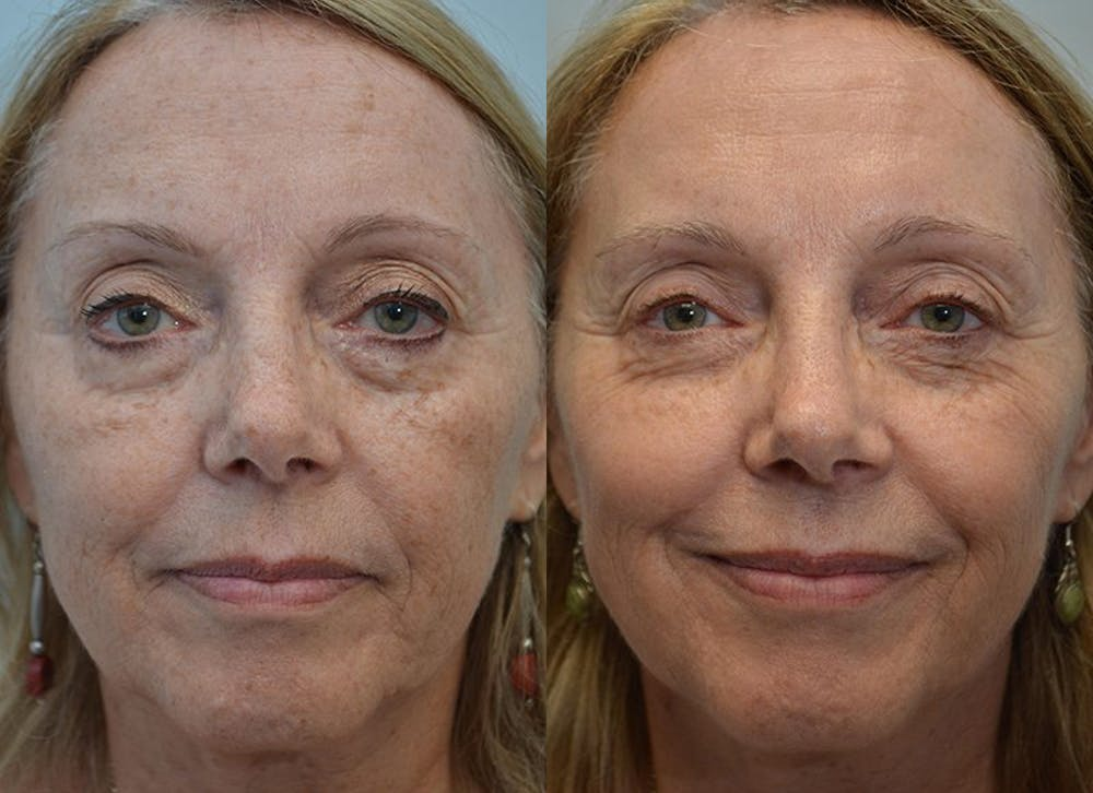 IPL / PhotoFacial Gallery - Patient 4588488 - Image 3