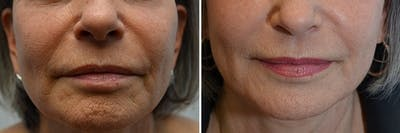 Micro Needling Gallery - Patient 4588489 - Image 1