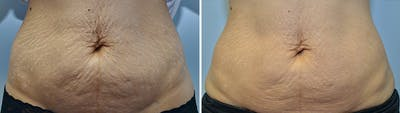 Micro Needling Gallery - Patient 4588491 - Image 7