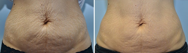 Micro Needling Gallery - Patient 4588491 - Image 1
