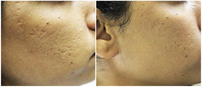 Micro Needling Gallery - Patient 4588493 - Image 1