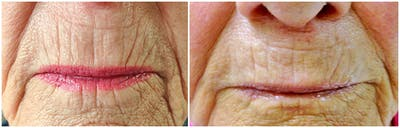 Micro Needling Gallery - Patient 4588498 - Image 1