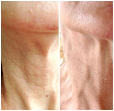 Micro Needling Gallery - Patient 4588500 - Image 1