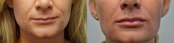 Lip Enhancement Gallery - Patient 4588505 - Image 1