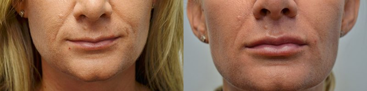 Lip Enhancement Gallery - Patient 4588505 - Image 1