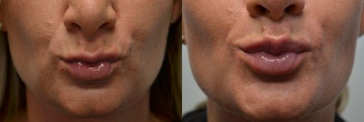 Lip Enhancement Gallery - Patient 4588505 - Image 2