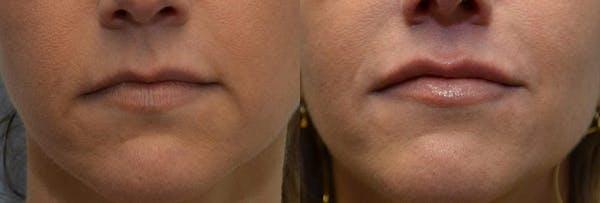 Lip Enhancement Gallery - Patient 4588507 - Image 1