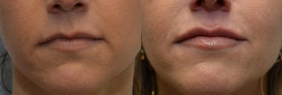 Lip Enhancement Gallery - Patient 4588507 - Image 1